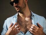 """Mặt, ngực nhiều lông, như thế có phải mắc """"chứng rậm  lông"""" không?"""